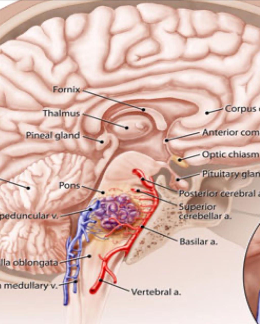 angioma-cavernoso-schema