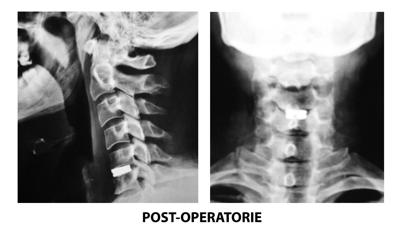 ernie-discali-cervicali-post-operatorie